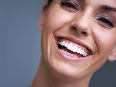 Cosmetic Dentistry Image for Iowa Dental Group - woman smiling