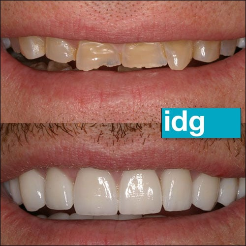 Best Cosmetic Dentist Des Moines IA - Iowa Dental Group